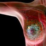 Ученые нашли связь между диабетом и раком молочной железы