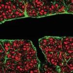 Ультразвук поможет в борьбе с раком мозга и болезнью Альцгеймера