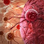 Ученые изобрели прибор для борьбы с раком
