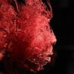 В Испании создан GPS для кровеносных сосудов